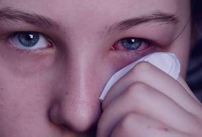 عفونت چشم,بیماری عفونت چشم,عفونت چشم در بارداری,علائم عفونت چشم,درمان عفونت چشم
