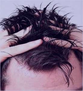 رفع چربی موی سر