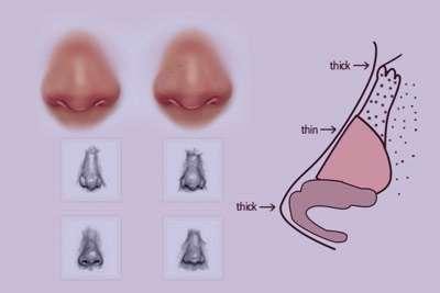 تمایز بینی های گوشتی و انواع آن