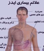 نشانه های ایدز در مردان , نشانه های ایدز , ایدز , درمان ایدز