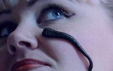 زالو درمانی , زالو درمانی صورت , زالو درمانی چیست , زالو درمانی برای واریس پا