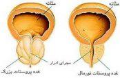 خواص استفاده از حنا در درمان پروستات بزرگتر از حد طبیعی