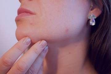 حساسیت پوستی , حساسیت پوستی در کودکان , حساسیت پوستی راش , حساسیت پوستی سگ