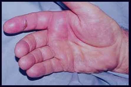 التهاب دست , درمان التهاب دست , التهاب مچ دست , التهاب تاندون دست , التهاب پوست دست , التهاب انگشتان دست