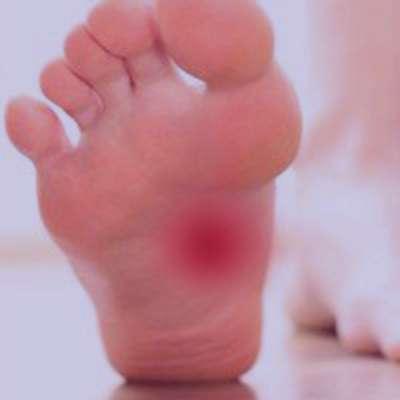 التهاب کف پا
