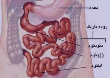 حساسیت به گلوتن , حساسیت به گلوتن چیست , حساسیت به گلوتن گندم , حساسیت به گلوتن غیر سلیاکی
