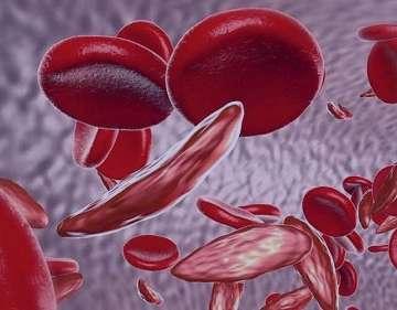 کم خونی داسی شکل , کم خونی داسی شکل طب سنتی , کم خونی داسی شکل و ازدواج , کم خونی داسی شکل چیست