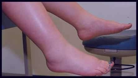 ورم پا , ورم پا در بارداری , ورم پا بعد از زایمان , ورم پای راست