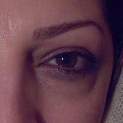 التهاب زیر چشم