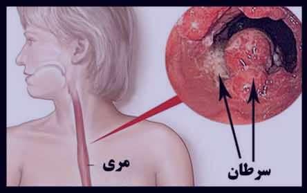 سرطان مری