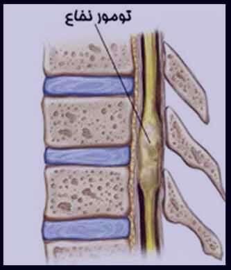 سرطان نخاع