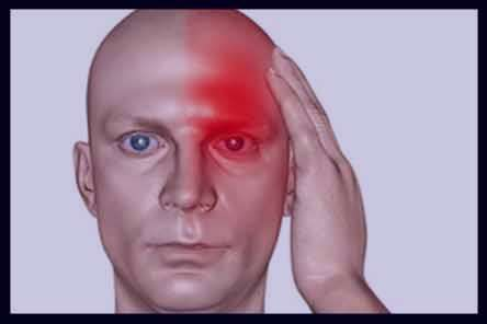 درد یک طرف سر