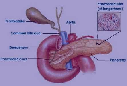 التهاب پانکراس