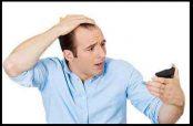 درمان و جلوگیری از ریزش مو سکه ای در زنان و کودکان و نوجوانان