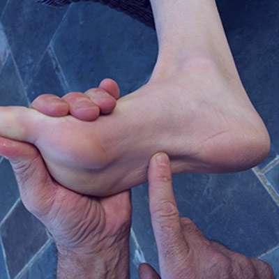 علت و دلایل درد کف پا بعد از پیاده روی و درمان آن چیست