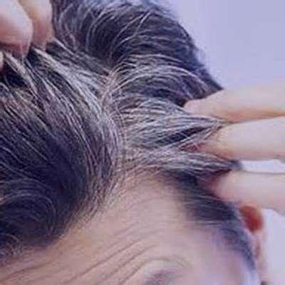 سفیدی مو