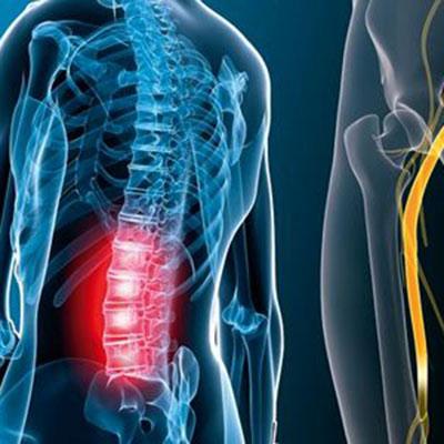 درد سیاتیک , درد سیاتیک پای راست , درد سیاتیک در بارداری , درد سیاتیک در لگن