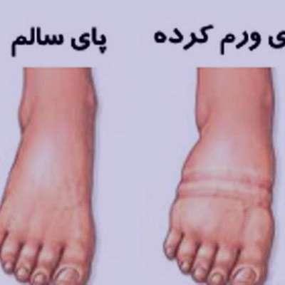 آمبولی پا , آمبولی پارادوکس , آمبولی پا در بارداری , درمان آمبولی پا