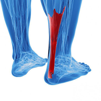 درد پاشنه پا , درد پاشنه پا و چربی خون , درد پاشنه پا از چیست , درد پاشنه پا راست