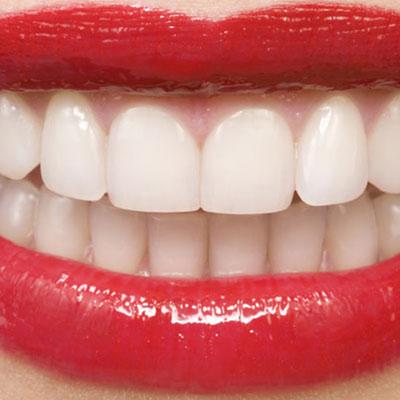 درد لثه , درد لثه پایین , درد لثه بین دو دندان , درد لثه دندان عقل