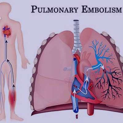 آمبولی ریه , آمبولی ریه Ppt , آمبولی ریه+درمان , آمبولی ریه در بارداری