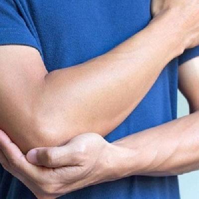 درد آرنج , درد آرنج در بدنسازی , درد آرنج دست چپ , درد آرنج تنیس بازان