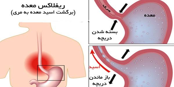 التهاب مری , التهاب مری و علائم , التهاب مری و تنگی نفس , التهاب مری علائم