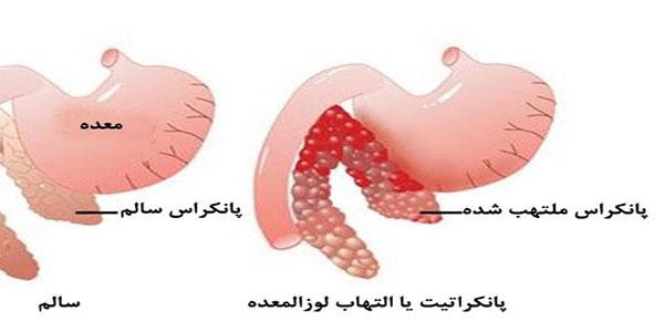 التهاب معده , التهاب معده چیست , التهاب معده مزمن , التهاب معده ودرمان