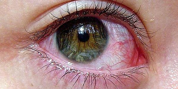 بیماری های چشم , بیماری های چشمی , بیماری های چشم انسان , بیماری های چشم و درمان آن