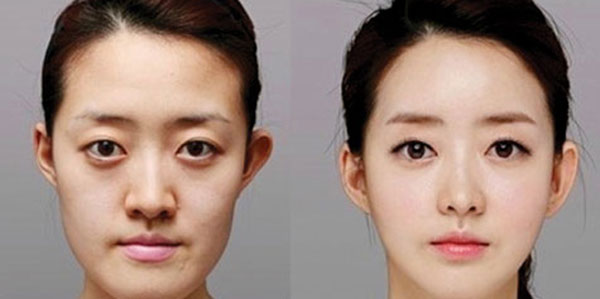 جراحی فک , جراحی فک پایین جلو آمده , جراحی فک و صورت , جراحی فک پایین