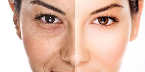 سلولیت صورت , سلولیت صورت چیست , سلولیت پوست صورت , درمان سلولیت صورت