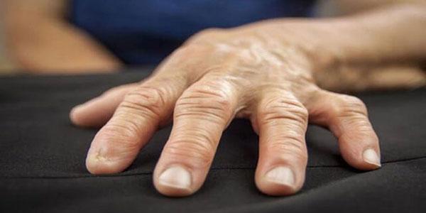 سلولیت دست , سلولیت دست راست , سلولیت دست چپ , سلولیت دست چیست