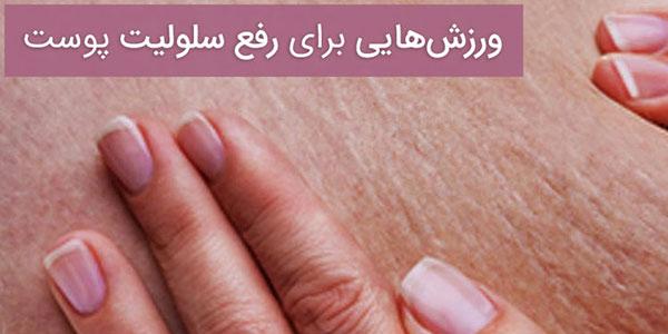 سلولیت پوست , سلولیت پوست چیست , سلولیت پوستی , سلولیت پوست صورت
