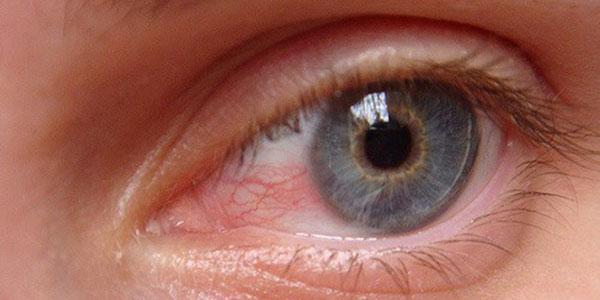 قرمزی چشم , قرمزی چشم نشانه چیست , قرمزی چشم کودک یک ساله , قرمزی چشم گربه