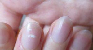 علت و علامت و درمان سفیدی روی ناخن در کودکان چیست