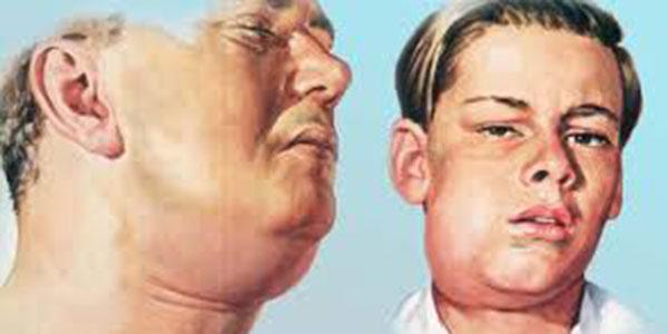 سلولیت دندان , سلولیت دندانی , سلولیت دندان عقل , درمان سلولیت دندان