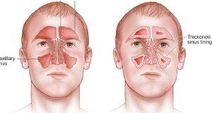 علائم و درمان گیاهی و خانگی التهاب سینوزیت چیست