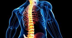 علت و علائم و درمان انواع سرطان ستون فقرات کمر چیست