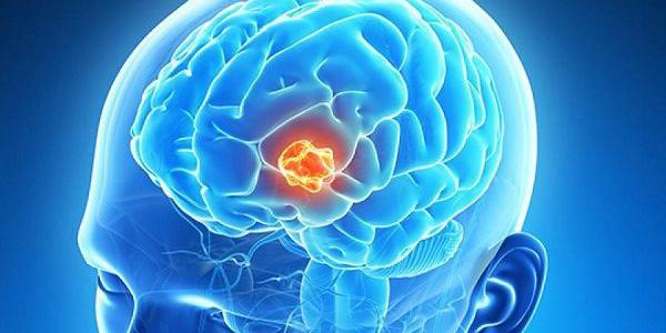 تومور مغزی , تومور مغزی چیست , تومور مغزی بدخیم , تومور مغزی خوش خیم