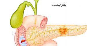 علائم و درمان گیاهی و دارویی بیماری پانکراتیت مزمن و حاد نکروزان و صفراوی چیست