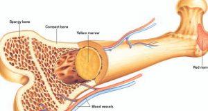 علت و علائم و درمان سرطان استخوان فک دست لگن ساق پا ترقوه دنده کمر چیست