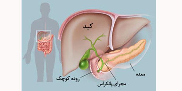 سرطان پانکراس , سرطان پانکراس بدخیم , سرطان پانکراس خوش خیم , سرطان پانکراس چیست