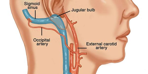 شریان کاروتید , شریان کاروتید داخلی , شریان کاروتید خارجی , شریان کاروتید چیست