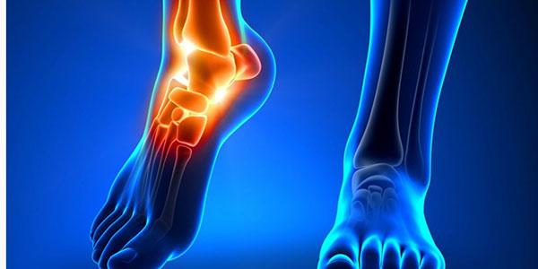 سرطان پا , سرطان استخوان , سرطان قوزک پا , آیا سرطان استخوان کشنده است