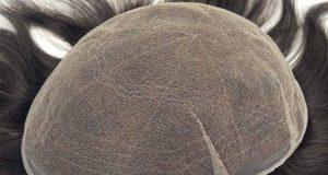 عوارض و عمر و عکس انواع پروتز مو سر دائم مردانه و زنانه چیست