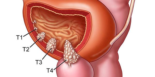 تومور مثانه , تومور مثانه در مردان , تومور مثانه در زنان , تومور مثانه Tcc