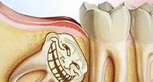 عوارض جراحی و کشیدن دندان عقل نهفته و نیمه نهفته و سردرد کجاست و چند ریشه دارد