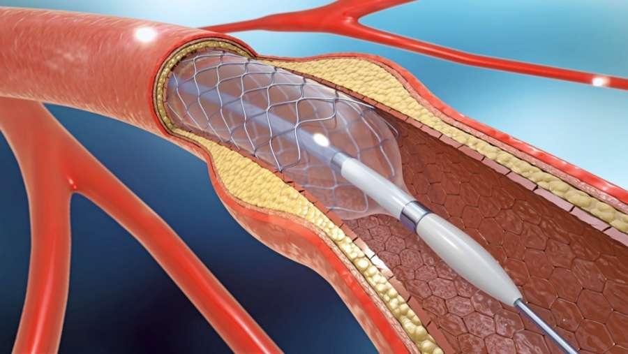 شریان و ورید چیست ,فرق شریان و ورید چیست,فرق بین شریان و ورید چیست,شریان و ورید بند ناف