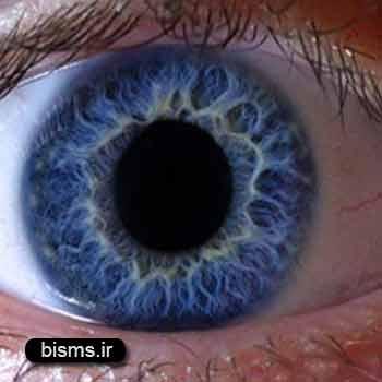 کوررنگی، درمان کور رنگی