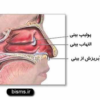 پولیپ بینی،درمان پولیپ بینی